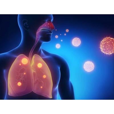 Инфекции дыхательных путей – 36 ч.