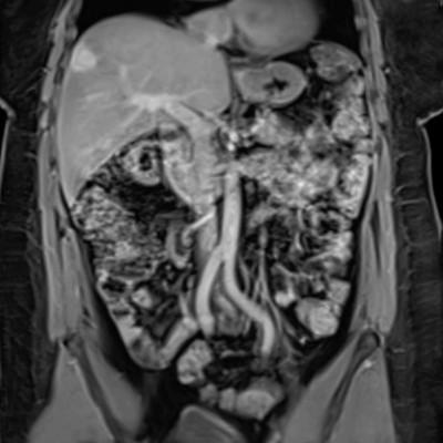 Актуальные разделы КТ и МРТ диагностики травматических и заболеваний брюшной полости и забрюшинного пространства – 36 ч.